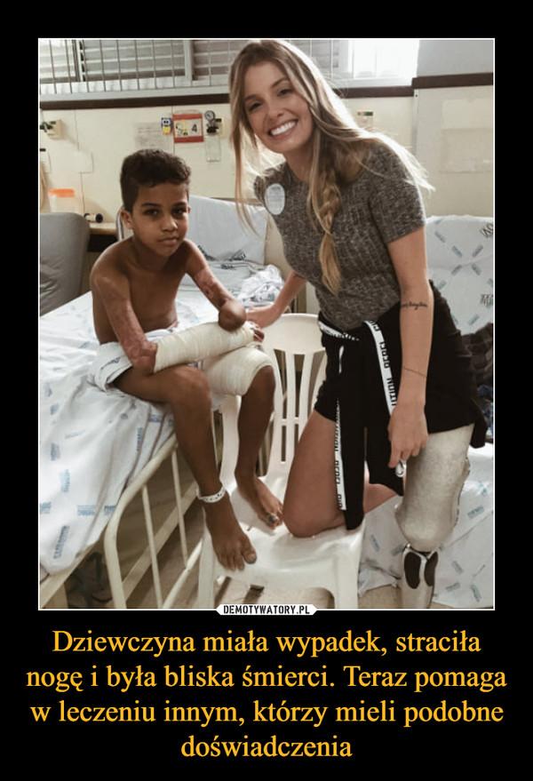 Dziewczyna miała wypadek, straciła nogę i była bliska śmierci. Teraz pomaga w leczeniu innym, którzy mieli podobne doświadczenia –