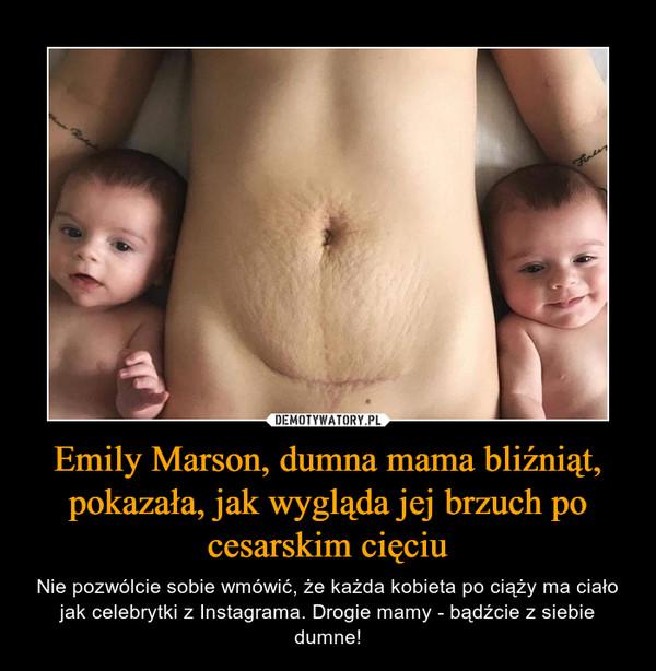 Emily Marson, dumna mama bliźniąt, pokazała, jak wygląda jej brzuch po cesarskim cięciu – Nie pozwólcie sobie wmówić, że każda kobieta po ciąży ma ciało jak celebrytki z Instagrama. Drogie mamy - bądźcie z siebie dumne!