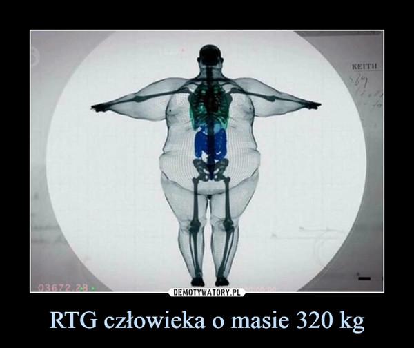 RTG człowieka o masie 320 kg –