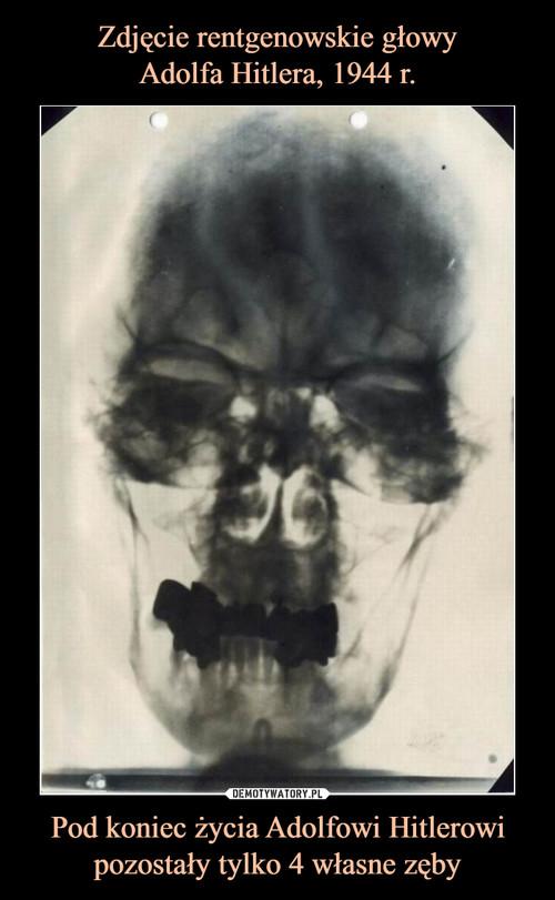 Zdjęcie rentgenowskie głowy Adolfa Hitlera, 1944 r. Pod koniec życia Adolfowi Hitlerowi pozostały tylko 4 własne zęby