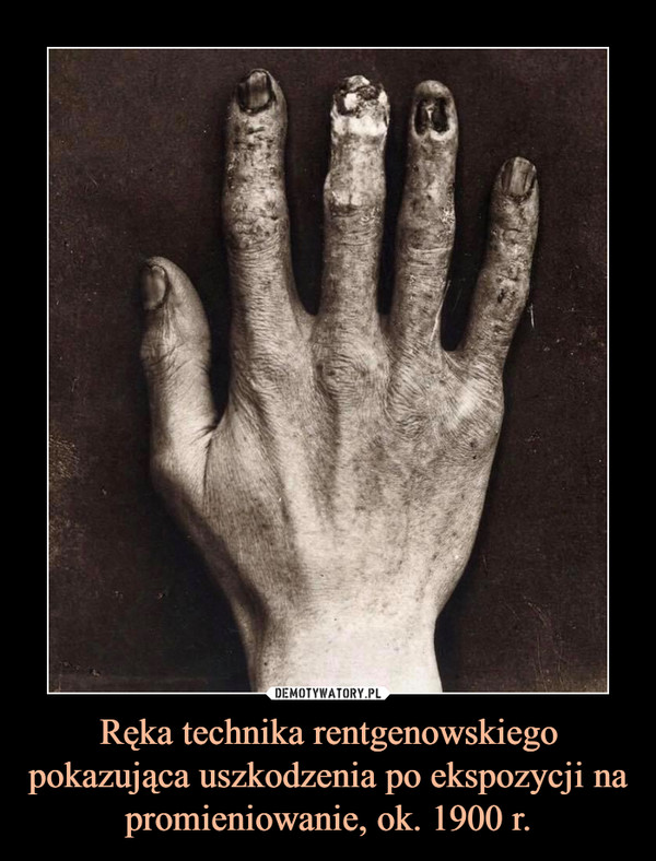 Ręka technika rentgenowskiego pokazująca uszkodzenia po ekspozycji na promieniowanie, ok. 1900 r. –