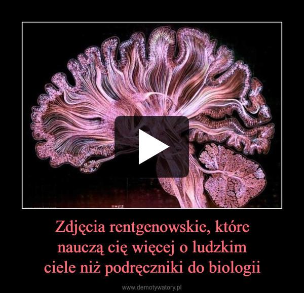Zdjęcia rentgenowskie, którenauczą cię więcej o ludzkimciele niż podręczniki do biologii –