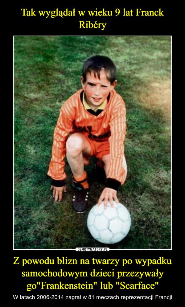 Tak wyglądał w wieku 9 lat Franck Ribéry Z powodu blizn na twarzy po wypadku samochodowym dzieci przezywały go